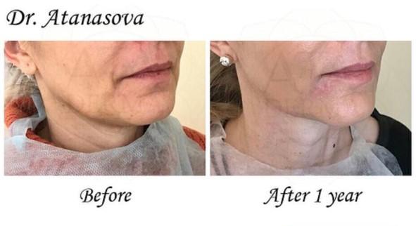 Dr_Snejana Atanasova_AtaDerma (15)
