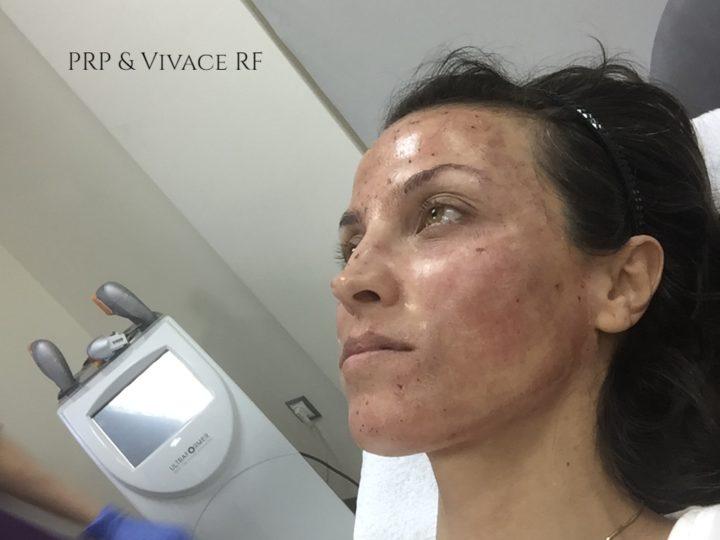Как за 30 минути изтрих 10 години от лицето си?